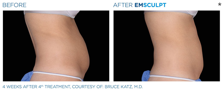 Before and After Photo of abdomen scultping Treatment in Merrimack