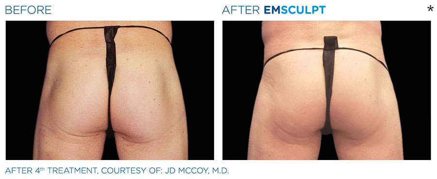 Before and After Photo of Butt Lift Treatment in Merrimack
